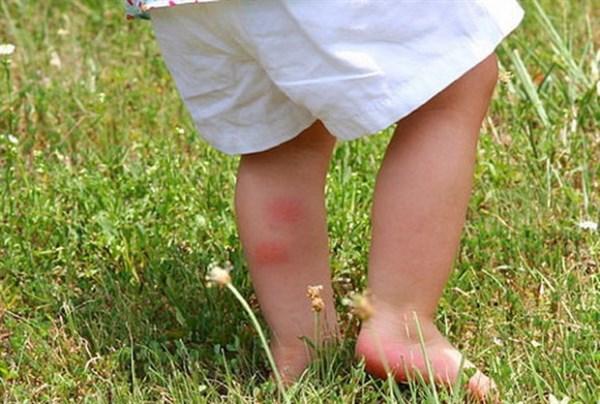 В Славянске врачи бьют тревогу. За полгода клещи покусали почти полтысячи человек. У 16 взрослых и 2 детей выявили опасную болезнь - клещевой боррелиоз.